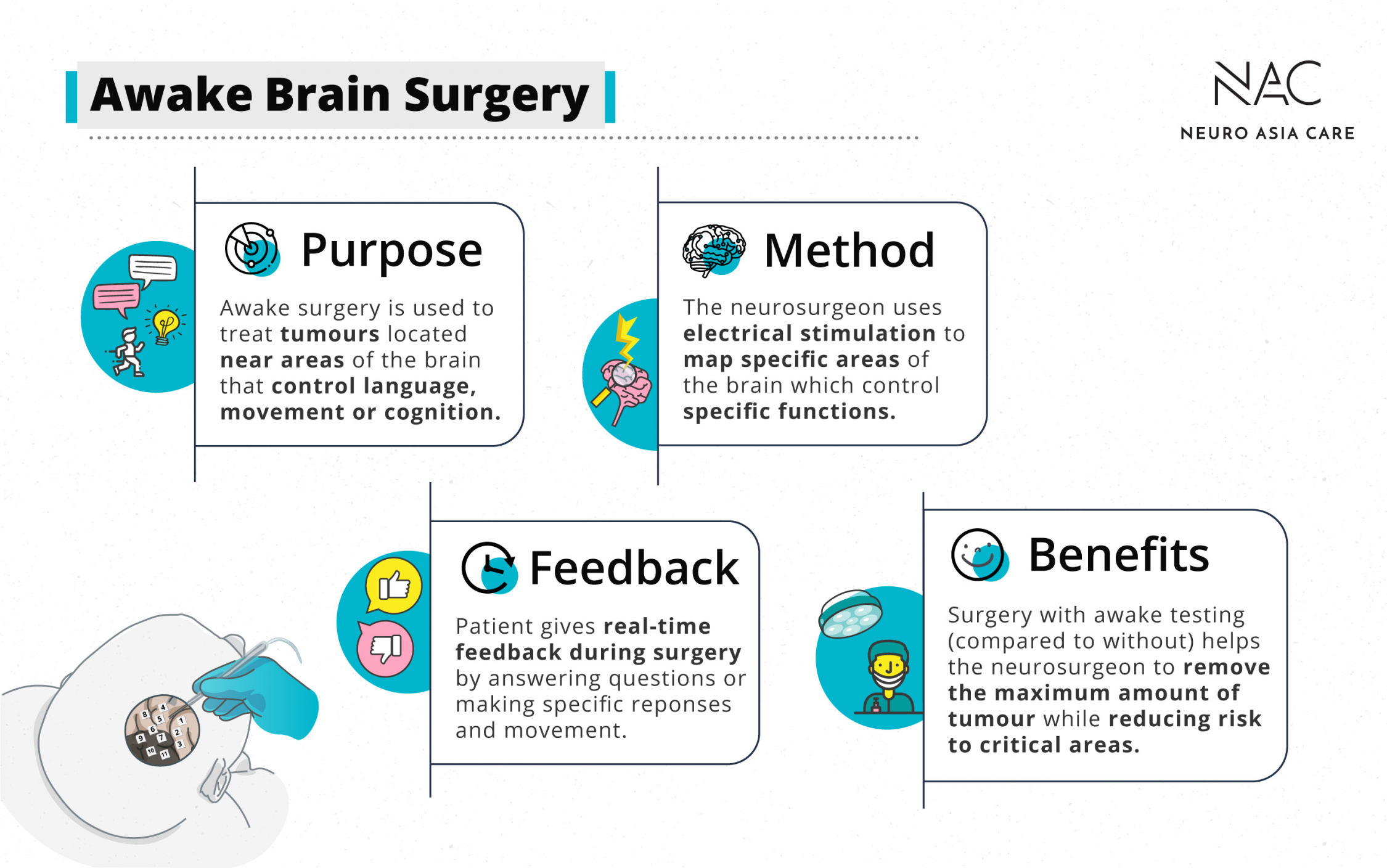 Important facts about awake brain surgery in a nutshell