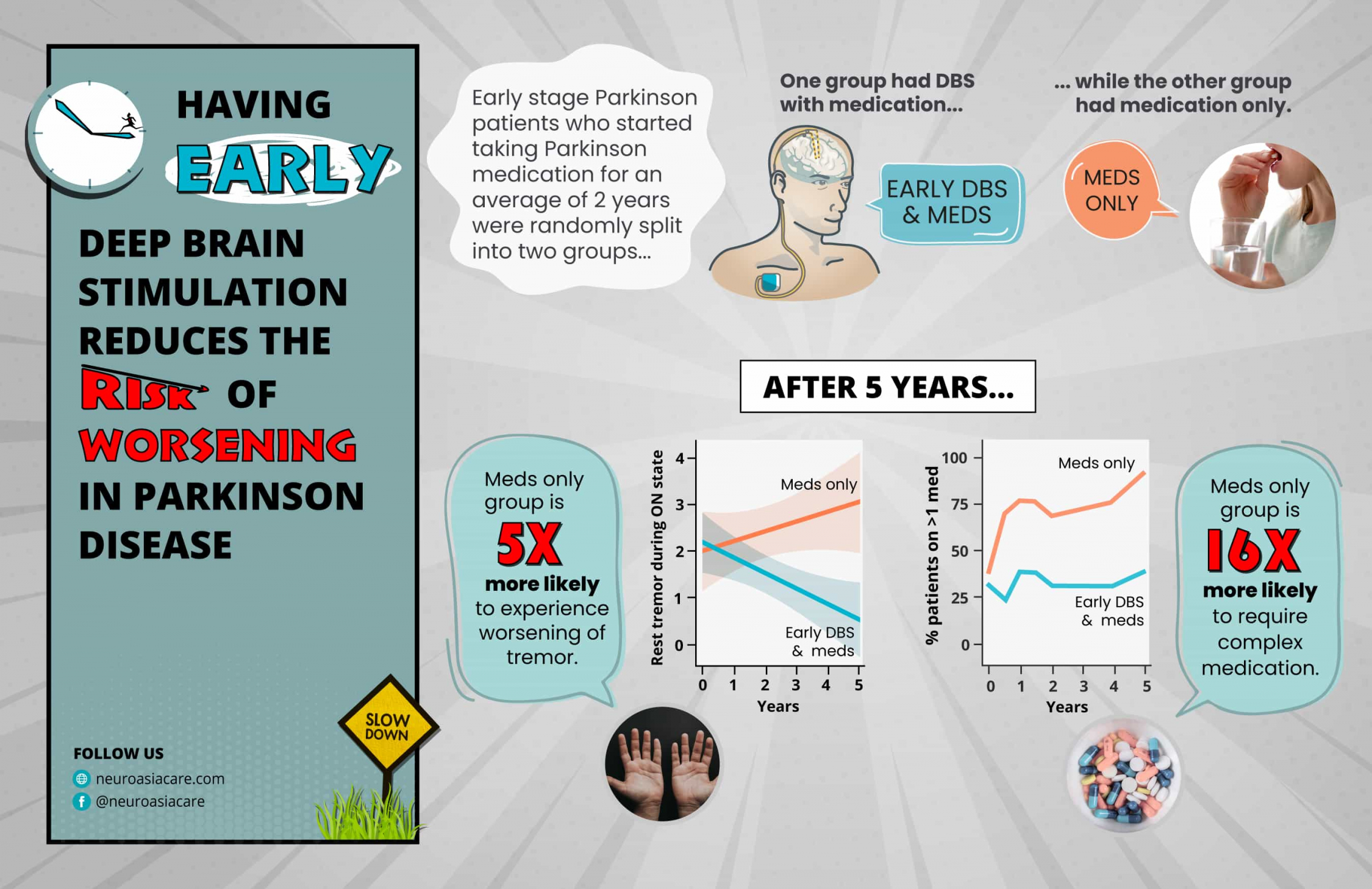 Graphic abstract shows early deep brain stimulation in Parkinson disease within four years of taking PD medication reduces risk of Parkinson disease progression.