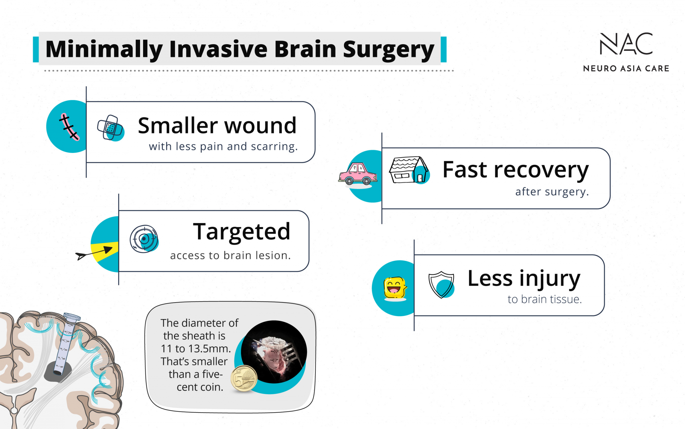 The advantages of minimally invasive brain surgery summarised